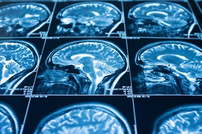 Blue scientific scans of a brain